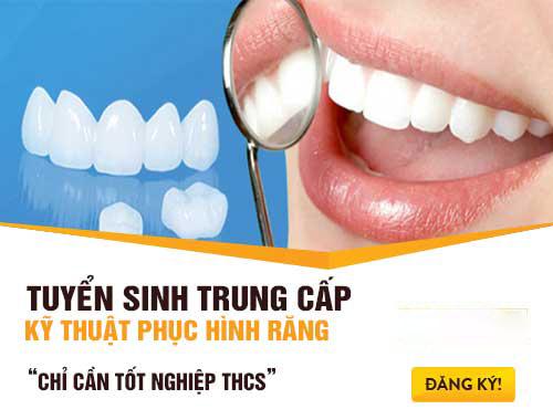 Tuyển sinh Trung cấp Kỹ thuật Phục hình răng phù hợp với xu hướng hiện đại